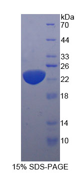 Eukaryotic Interleukin 11 (IL11)