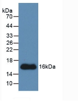 Monoclonal Antibody to Connective Tissue Growth Factor (CTGF)