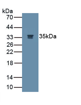 Monoclonal Antibody to Nerve Growth Factor (NGF)