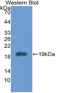 Monoclonal Antibody to Interleukin 1 Receptor Antagonist (IL1RA)