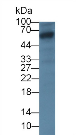 Monoclonal Antibody to Glypican 3 (GPC3)