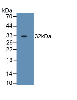 Monoclonal Antibody to Haptoglobin Related Protein (HPR)