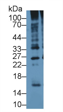 Polyclonal Antibody to Ubiquitin (Ub)