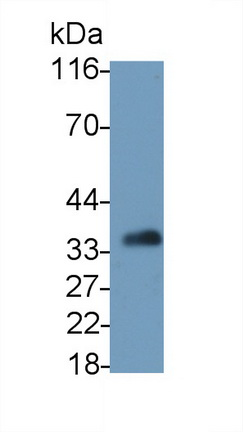 Polyclonal Antibody to Interleukin 2 Receptor Alpha (IL2Ra)