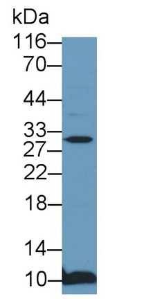Polyclonal Antibody to Cyclin Dependent Kinase Inhibitor 1B (CDKN1B)