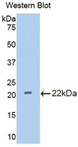 Polyclonal Antibody to Interleukin 18 Binding Protein (IL18BP)