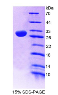 Recombinant Nitric Oxide Synthase 1 Adaptor Protein (NOS1AP)