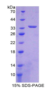 Recombinant Interleukin 33 (IL33)