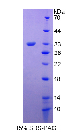 Recombinant Haptoglobin Related Protein (HPR)