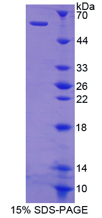 Recombinant Cat Eye Syndrome Chromosome Region, Candidate 1 (CECR1)