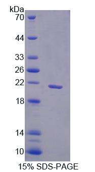 Recombinant Family With Sequence Similarity 3, Member B (FAM3B)