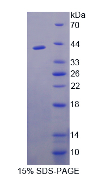 Recombinant FK506 Binding Protein Like Protein (FKBPL)