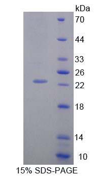 Recombinant Growth Arrest And DNA Damage Inducible Protein Alpha (GADD45a)