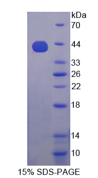 Recombinant Insulin Like Growth Factor 2 mRNA Binding Protein 3 (IGF2BP3)