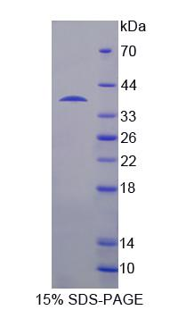 Recombinant USP6 N-Terminal Like Protein (USP6NL)