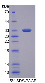 Recombinant Tumor Necrosis Factor Alpha Induced Protein 6 (TNFaIP6)