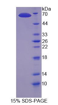 Recombinant Dynein Heavy Chain Domain Containing Protein 1 (DNHD1)