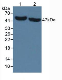 Monoclonal Antibody to Isocitrate Dehydrogenase 1, Soluble (IDH1)
