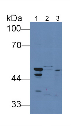 Polyclonal Antibody to Tumor Necrosis Factor Receptor Superfamily, Member 10B (TNFRSF10B)